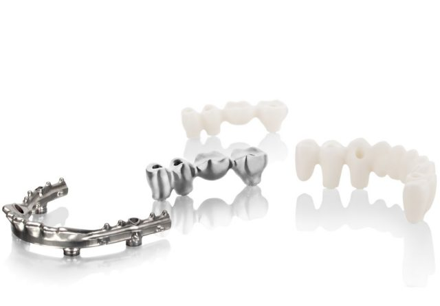 Fixed implant restorations